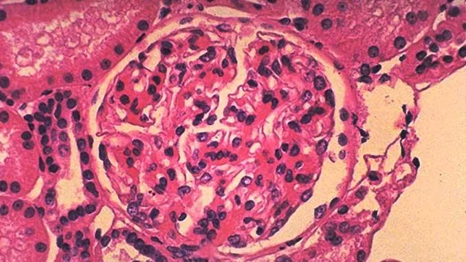 IgA Nefropatisi - Berger Hastalalığı