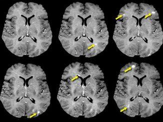 Multipl skleroz