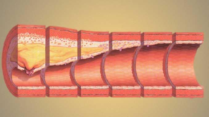 Ateoskleroz damar sertliği