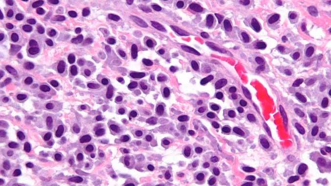 mastositoz