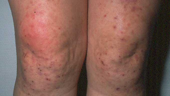 dermatitis herpetiformis