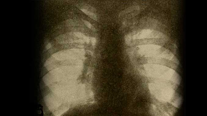 kalp ve akciğerlerin radyolojik görünümü