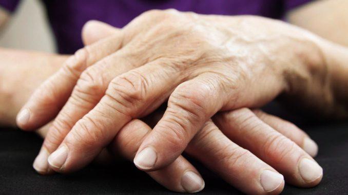 Romatoid artritte (Eklem Romatizması) Mast Hücrelerinin Rolü
